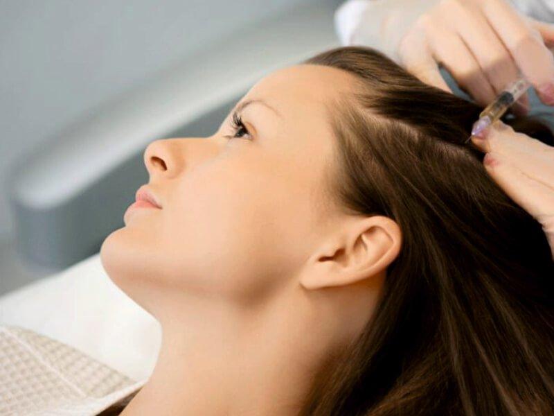 Büyüme Faktörlü Saç Tedavileri