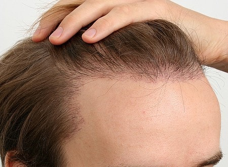 PRP İle Saç Ekimi